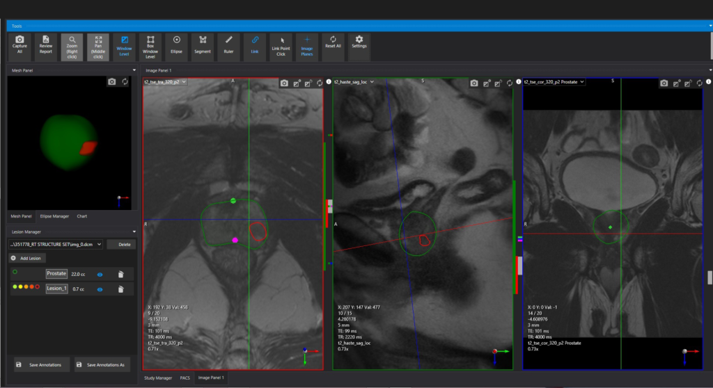 Fusion MR prostate radiology software
