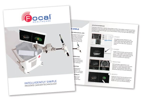Focal Healthcare Fusion BX targeted biopsy brochure