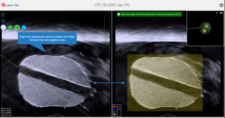 "Probe is maneuvered until live ultrasound (left) matches ""home"" image (right)"